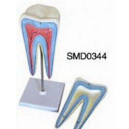 Model molar-2 piese