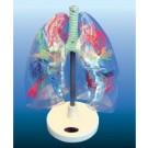 Mulaj transparent segmente bronhopulmonare